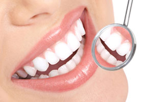 Smile Makeovers & Teeth Whitening